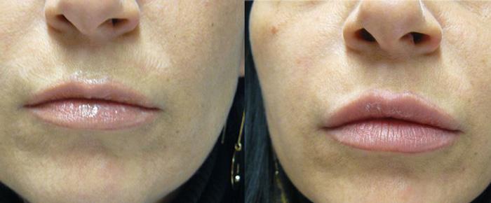 Vip's Lips risultati